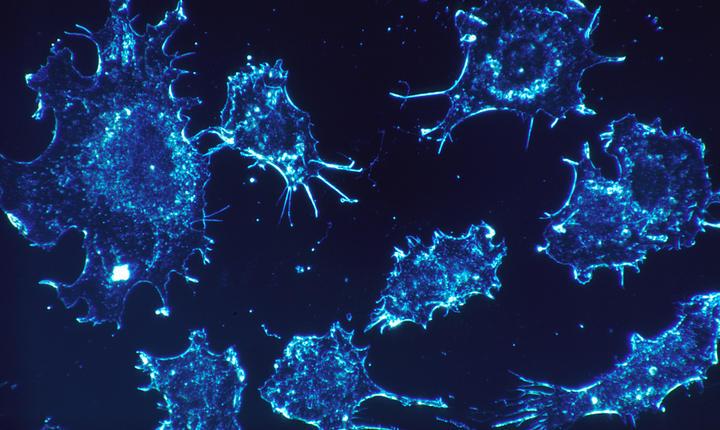 Cercetătorii au identificat mutaţiile genetice responsabile cu extinderea cancerului de prostată.