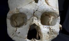 Craniul descoperit în Spania, cu cele două urme de lovituri (Foto: Reuters/Javier Trueba/Madrid Scientific Films)