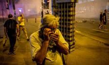 Protestatar afectat de gaze lacrimogene, la mitingul din 10 august 2018 (Foto: AFP/Andrei Pungovschi)