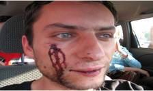 Șerban Marinescu, după ce ar fi fost agresat de polițiști