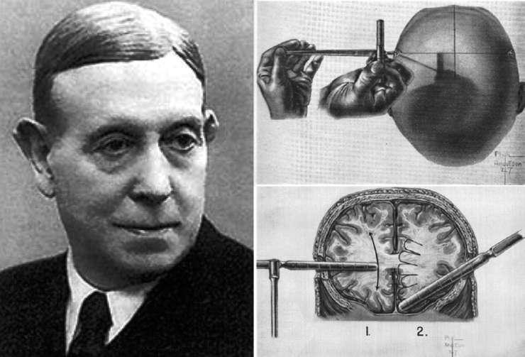 Egas Moniz, medic portughez, inventatorul controversatei lobotomii, laureat al premiului Nobel pentru medicinà în 1949