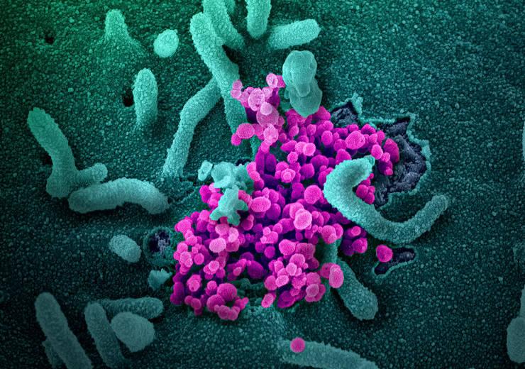 Cum arată coronavirusul văzut la microscop (NIAID-RML)